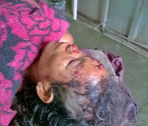 Nimai-Rabha-beaten-in-attack-in-Assam-state-India.-Morning-Star-News
